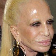 My Botox hell